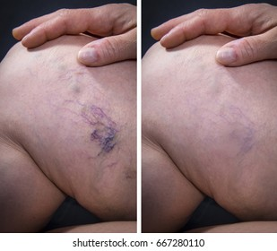 Adult woman leg with varicose veins before and after treatment on dark background