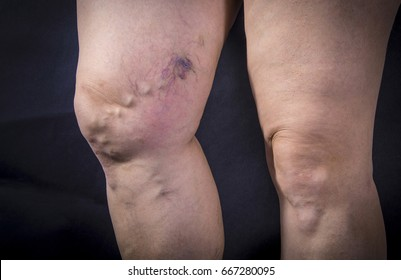Adult woman legs with varicose veins on dark background