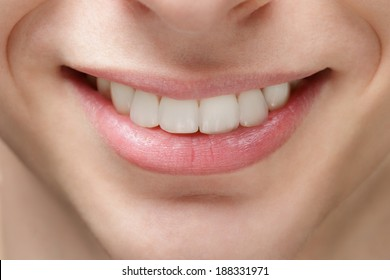 adult young man smile, after orthodontic treatment with braces