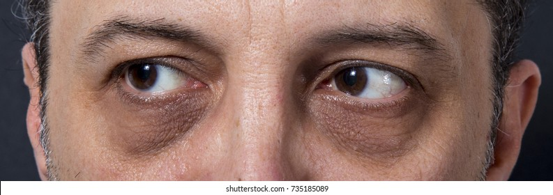 Adult's man eyes with dark rings
