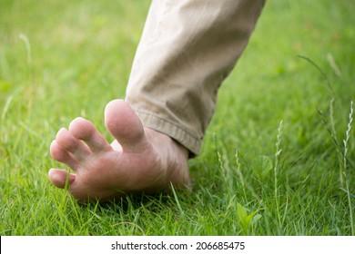 An advanced flatfoot - medical condition