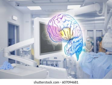 Advanced technologies of brain examination in medicine.