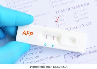 AFP positive test result by using rapid test cassette, liver cancer diagnosis