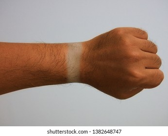 After returning from the summer trip, the sun burned on the arm, leaving the clock mark