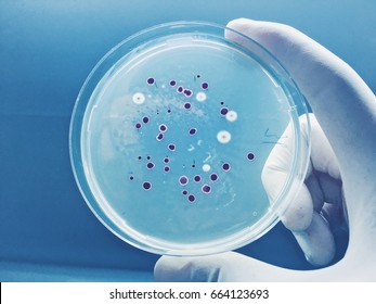 Agar plate full ofmicro bacterias and microorganisms