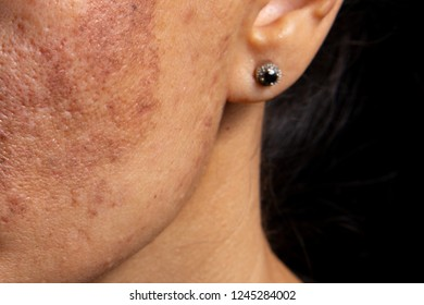 Age spots and increased skin pigmentation during sunburn. The rules of health care in the middle age.