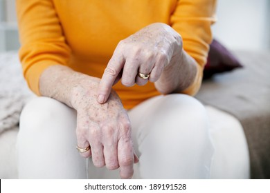 Age spots on senior woman hands.