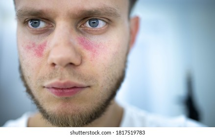 age spots of redness on the face, a young man is sick systemic lupus erythematosus