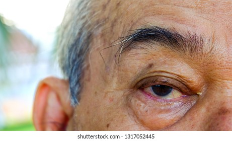 age, vision and old people concept, close to the face and eyes of an Asian old man