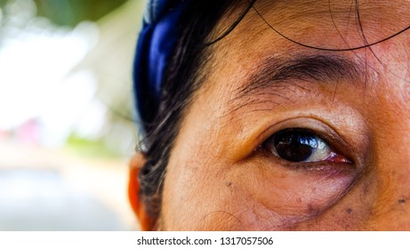age, vision and old people concept, close to the face and eyes of an Asian old women