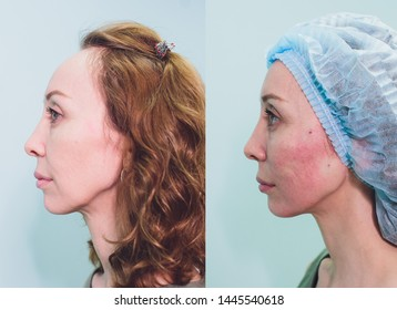 Aged woman doing mesothreads and Thread Lifting, Cosmetology. Cosmetic procedure to eliminate signs of aging. Beauty Face, Facial contour, plastic surgery concept for Age 40-50 years.