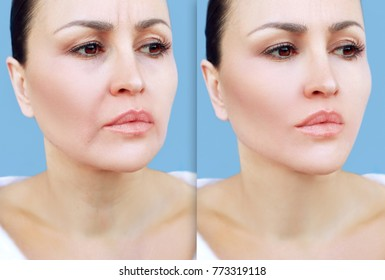 Aging. Mature woman-young woman.Face with skin problem.Before and after cosmetic procedures,showing photos.