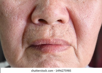 Aging skin folds or skin creases or wrinkles at face especially around mouth of Southeast Asian, Chinese elderly man with large skin pores. Macro view.