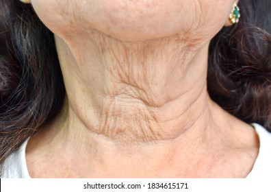 Aging skin folds or skin creases or wrinkles at neck of Southeast Asian, Chinese elderly woman. Front view.