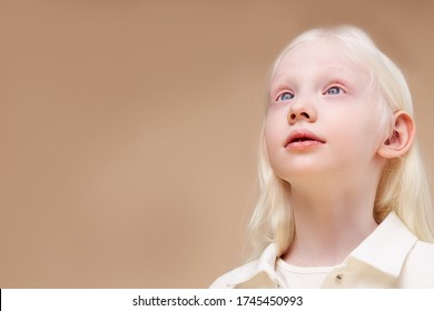 Albino. Cute caucasian little girl with albinism syndrome, she looks up. natural beauty and people diversity concept