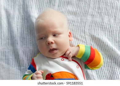 Albino. Cute little baby boy with albinism syndrome.