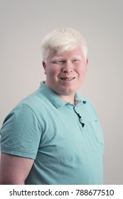 Albino young man portrait. Blond guy isolated at grey background. Albinism, pale skin.