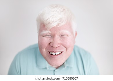 Albino young man portrait. Smiling man isolated at white background. Albinism, pale skin.