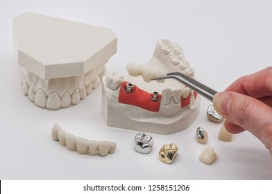 All Zirconia and Metal Crown with Implant Abutment