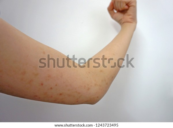 Allergic Skin Rash Itchy Skin Stock Photo (Edit Now) 1243723495