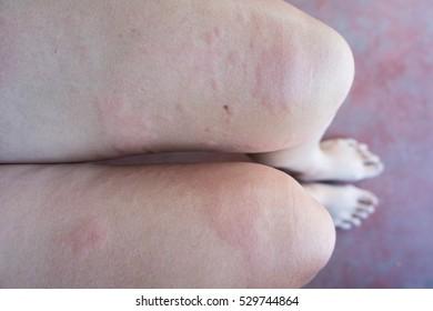 Foto, immagini e foto stock a tema Blotchy Skin | Shutterstock
