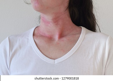 Allergic skin reaction on the female neck and face