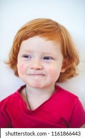 allergies, atopy, atopic dermatitis, dermatitis, ecdysis boy, red-haired, blue-eyed, boy, male, european, curly