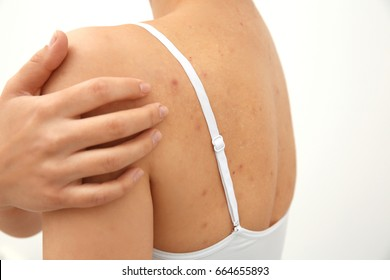 Allergy concept. Woman scratching her shoulder with pimples on white background
