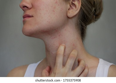 Allergy on the face and neck of a young woman.