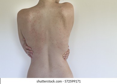 Allergy rash on back of woman isolated on white. Soft Focus