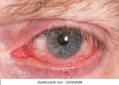 Almost open red and irritated eye with blood vessels
