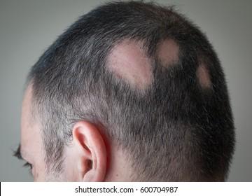 Bald Spot Images Stock Photos Vectors Shutterstock