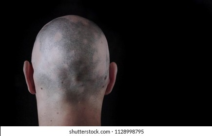 Alopecia Bald Patches Back of head