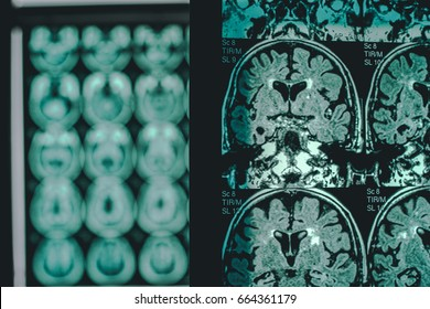 alzheimer's disease on MRI 2