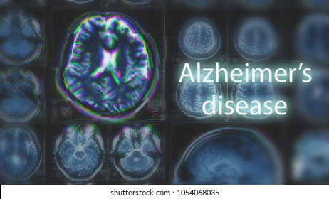 Alzheimer's disease or Parkinson concept. Blurred MRI scan of brain with glitch effect, toned