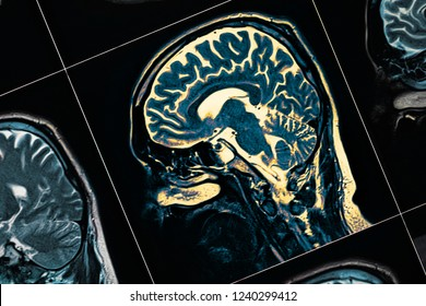 anatomical structures of the human brain on an MRI scan. Abstract technological medical background