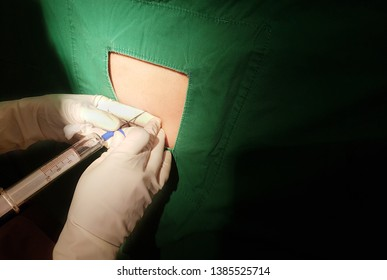 Anesthesiologist or doctor holding epidural needle on back of patient,Spinal anesthesia injections,Epidural anesthesia injections in preparation for a caesarean section,SOAT-for parturient.E.D.B