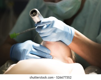 anesthesiologist performs nasotracheal intubation patient