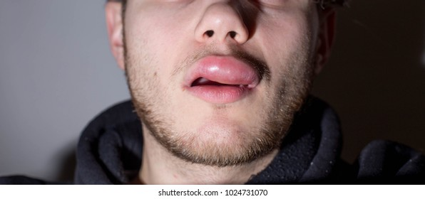 angioedema. Allergic reaction to the lip in the form of an edema in a man.