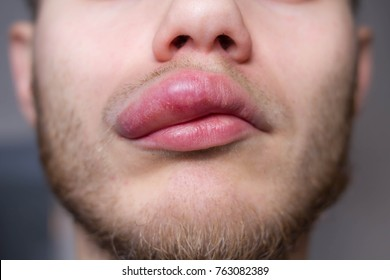 angioedema. Allergic reaction to the lip. Hives