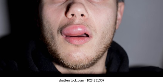 angioedema. Allergic reaction to the lips of a man. Edema