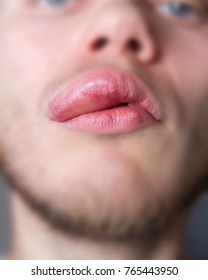 angioedema in a man on the upper lip. Allergic reaction .