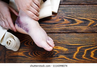 ankle injury with dislocation and sprains, tight bandage with elastic bandage and ointment treatment
