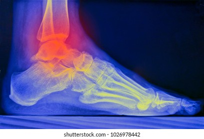 Ankle joint, x ray image, red colored ankle joint -symbol of pain