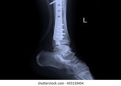 Ankle left joint : fracture ankle left joint