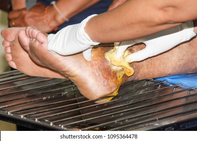 Ankle lesions of the diabetic foot.Pressure Ulcers. Not dead. Ulcer curable.blur focus.