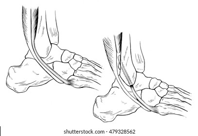 Ankle - Sprained. Illustration of a sprained (right) and normal (left) ankle. A torn peroneus brevis tendon is shown pulled forward from its normal position.