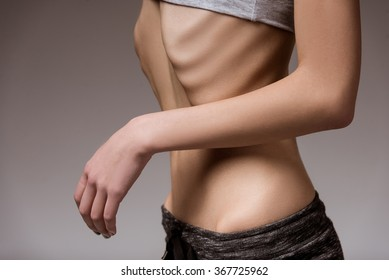 Anorexia. Girl shows thin stomach and ribs close-up
