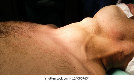 Anterior Neck Swelling, Goitre being prepared for Surgery. The neck is supported in extended position for proper visualisation. The operation called as Thyroidectomy.