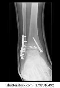 Anterior posterior view x-ray of a reduced and stabilized bimalleolar ankle fracture post surgery with applied plaster cast